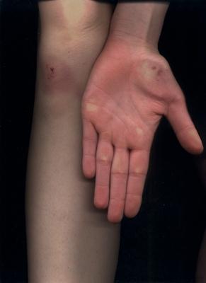 leg-hand9
