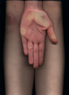 legs-hand
